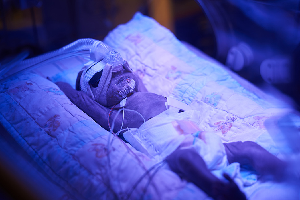 preemie photo therapy in the NICU